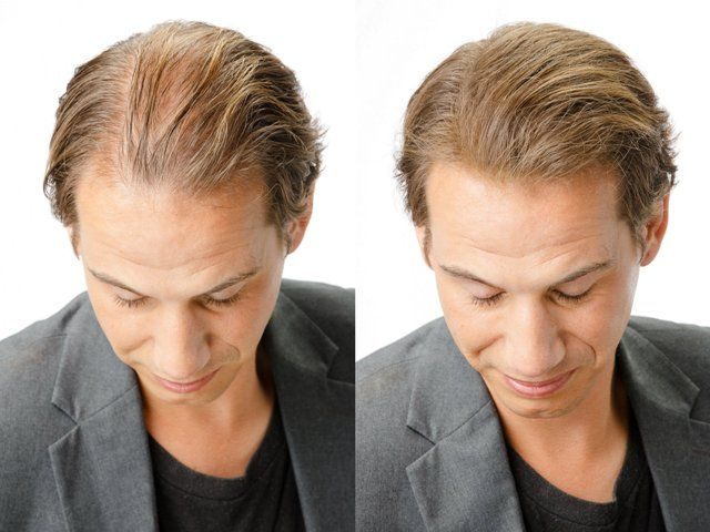 Four Ways Of Preventing Hair Loss
